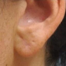 Ear lobe after