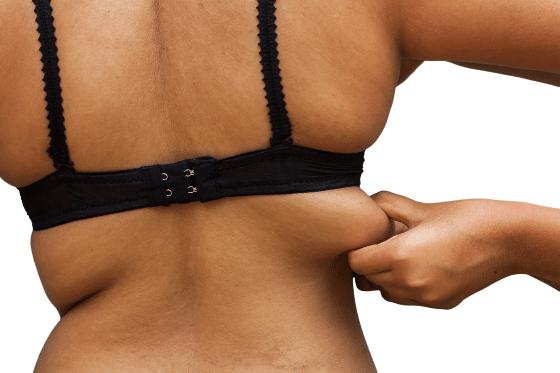 Upper and Lower Back Liposuction