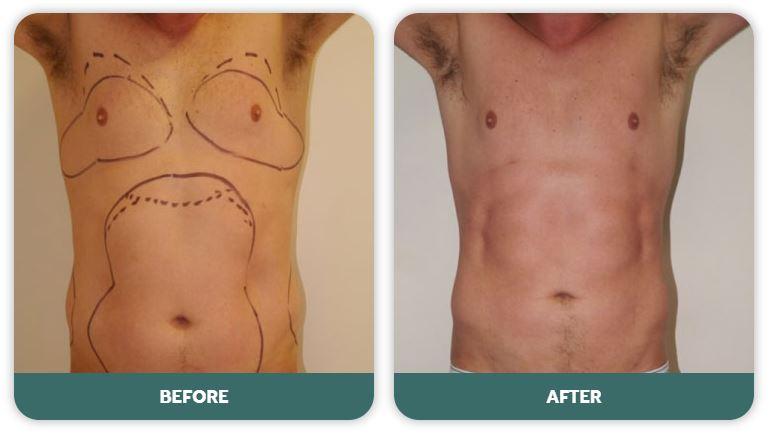 chest liposuction