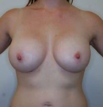 Breast augmentation and lift teardrop after