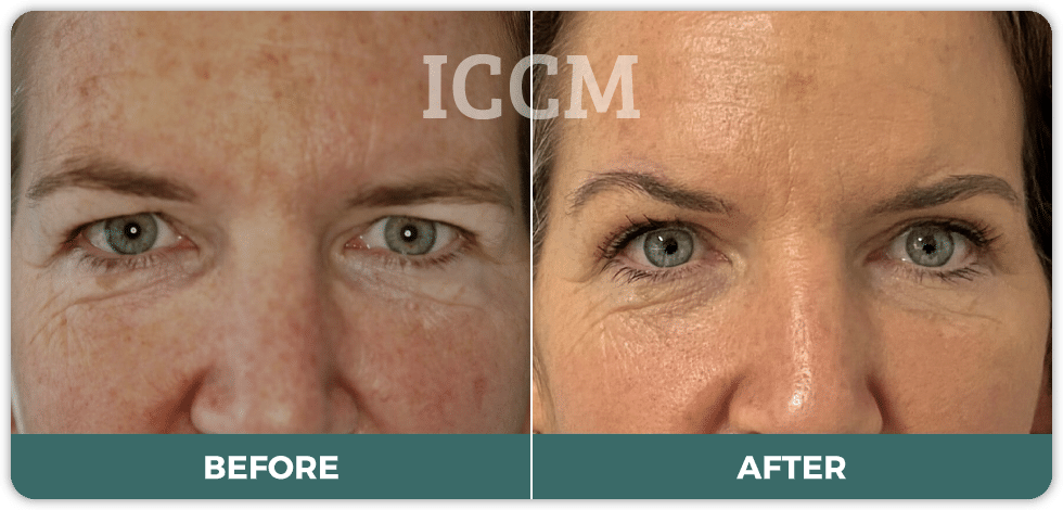 Direct excision brow lift and Upper blepharoplasty