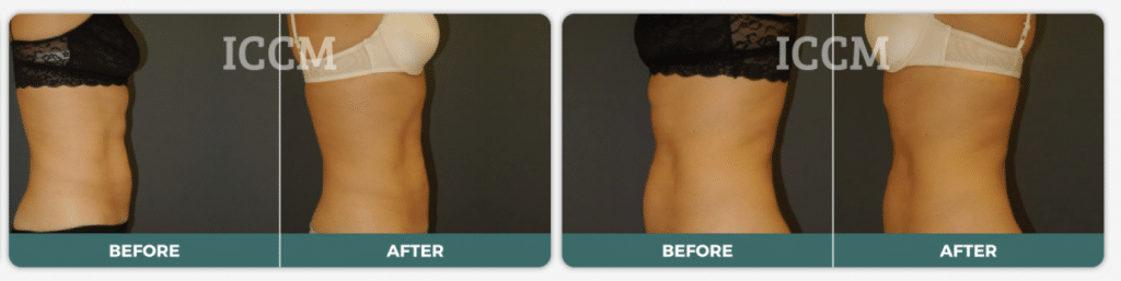 Before and after liposculpture results of an ICCM patient.