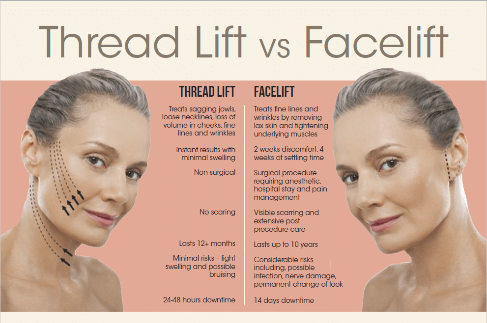difference between a thread lift and facelift