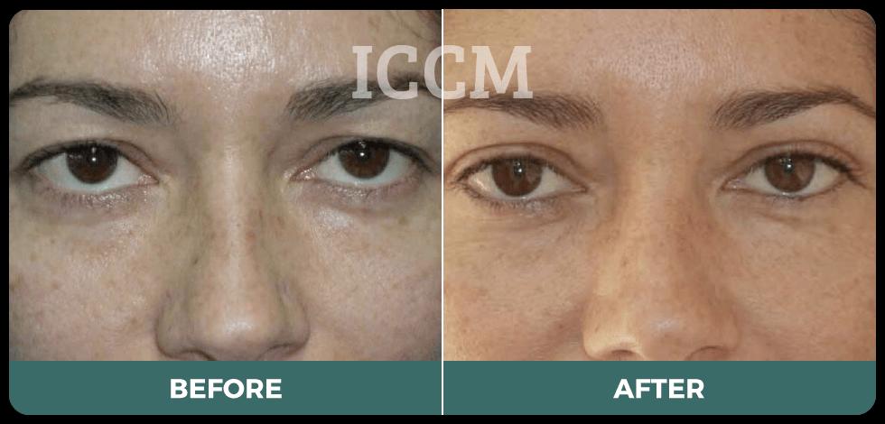 blepharoplasty vs brow lift