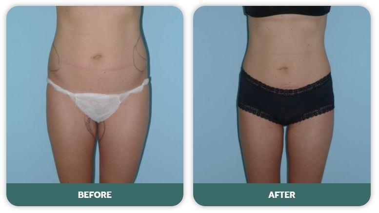 Liposuction Vs Liposculpture