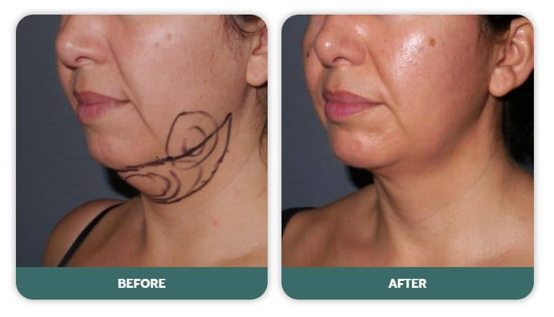 double chin liposuction sydney